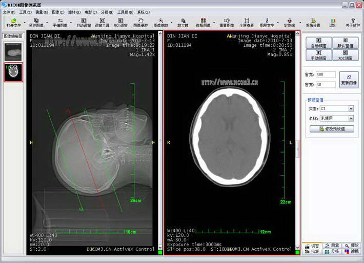 锐影医学影像PACS工作站系统