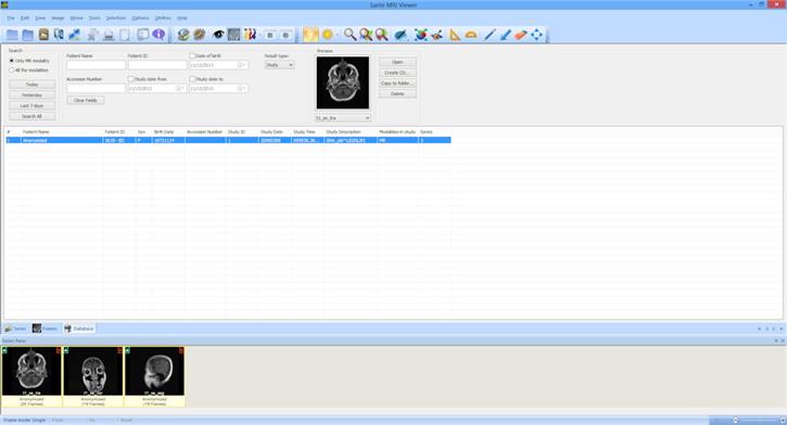 Sante MRI Viewer