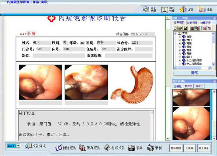 电子胃肠镜工作站软件