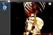 ORPALIS DICOM Viewer 1.0.0