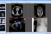 Sante DICOM Viewer 8.1.3