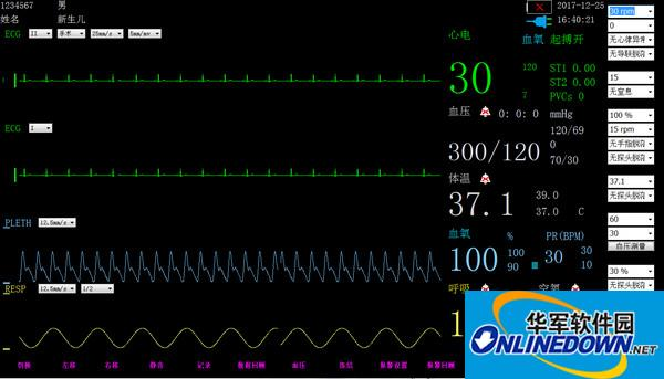 新生儿监护仪软件Verbpo