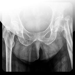 X光片检查