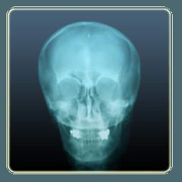 X-Ray Camera 1.0.6