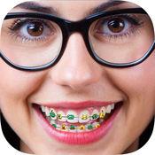 对牙齿括号 - 图片编辑器,正畸 1
