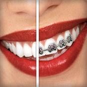 牙套 (Brace Face)