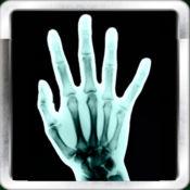 X射线扫描+(X-Ray Scan +)