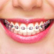 牙齿保持器 照片编辑器 - 脸贴 有趣的图片 1