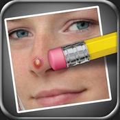 瑕疵清除器 (Pimple Eraser) 2