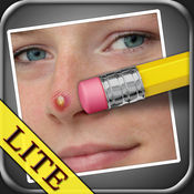 瑕疵清除器 LITE (Pimple Eraser LITE) 2