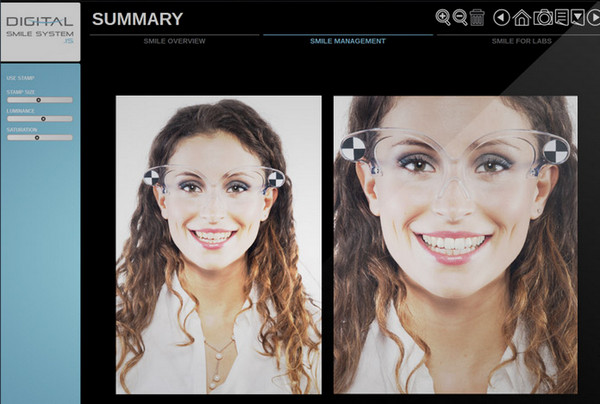 Digital Smile System(数字微笑系统)