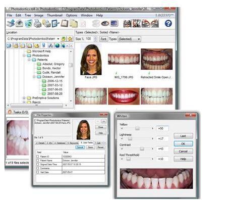 Photodontics Pro(牙科图像管理系统)