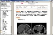 金马扬名PACS影像浏览器