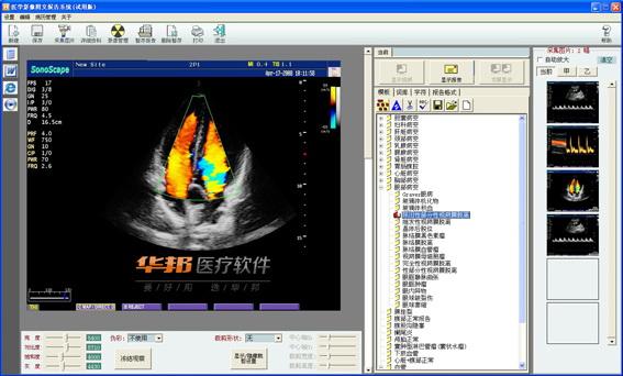 超声工作站软件截图1