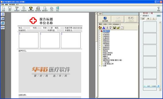 超声工作站软件截图2