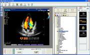 超声工作站软件LOGO