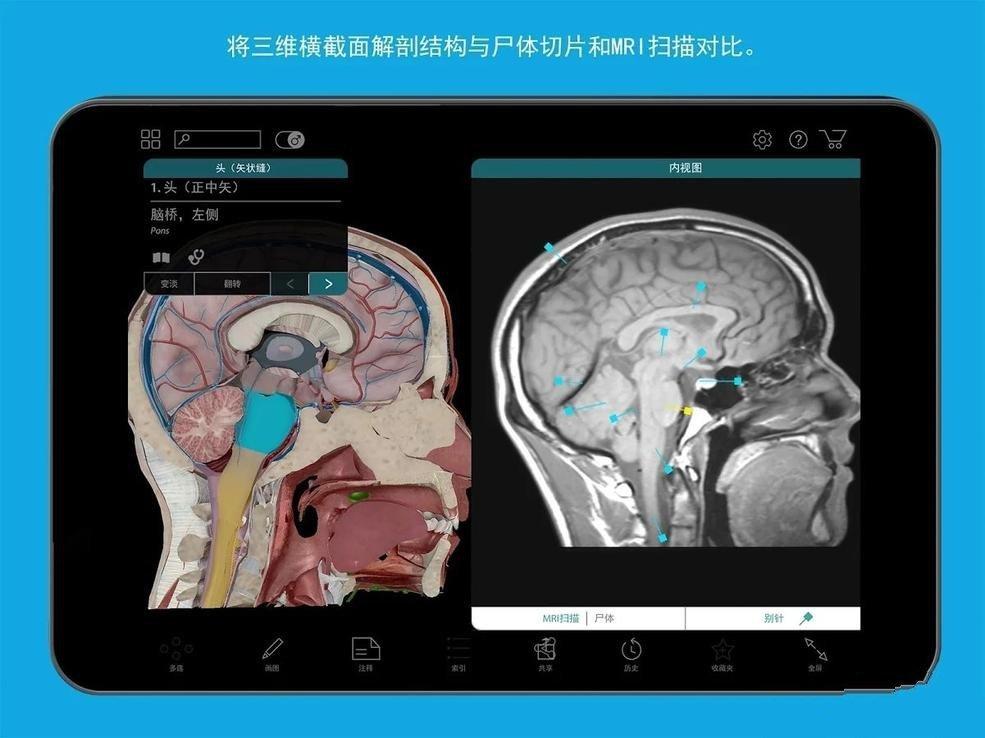 人体解剖学图谱:Human Anatomy Atlas截图