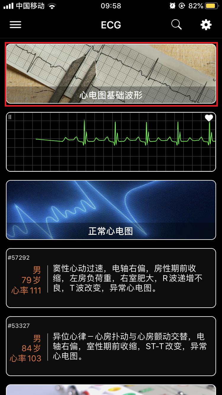 心电图截图