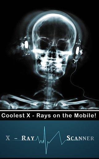 X射线扫描仪截图5