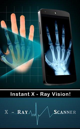 X射线扫描仪截图2