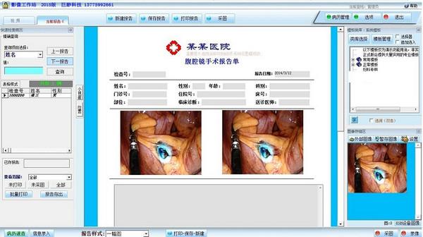 腹腔镜工作站软件