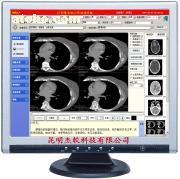 X光影像系统工作站LOGO