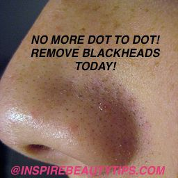 Removing Whiteheads